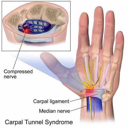 Salud laboral sindrome tunel carpiano